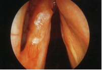 Early Laryngeal Cancer