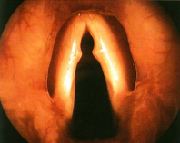 Vocal Nodules
